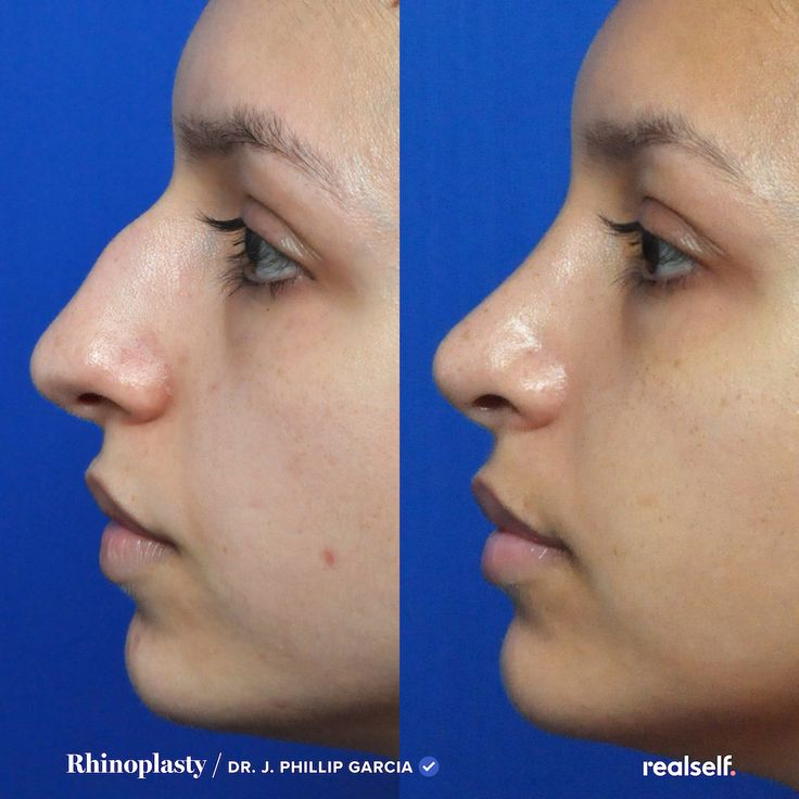 8 things to know before getting rhinoplasty in 2020