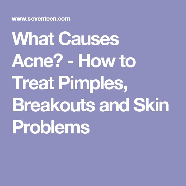 What Causes Acne? - How to Treat Pimples, Breakouts and Skin Problems