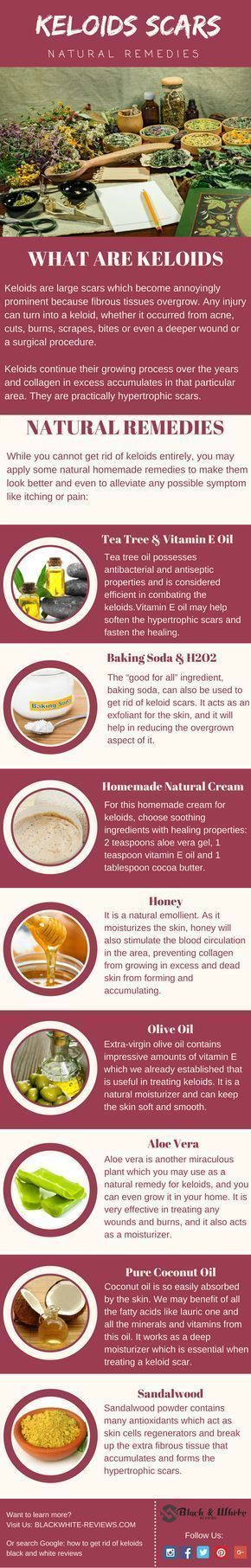 Keloids scars treatment. How to get rid of them with home remedy. http://www.scarrcreams.com/pimple-scars-removal/ #acneremediesscar