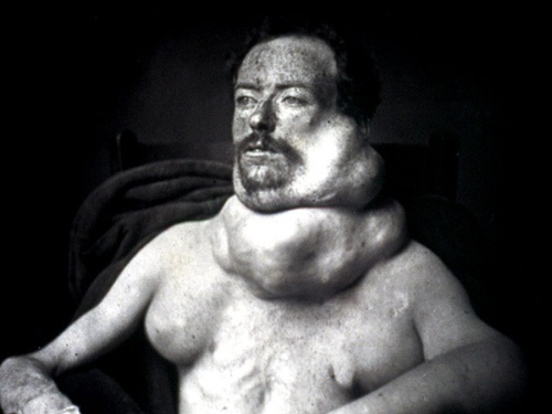 In the 19th Century, doctors were reluctant to operate on thyroid tumors like the ones shown in this 1875 photograph. That's because the gland was so full of blood vessels that serious bleeding was a real risk. That meant some patients, like this man, faced the threat of slow asphyxiation.This Man, Thyroid Tumor, Slow Asphyxi, 19Th Century, Serious Bleeding, Blood Vessel, Medical Oddities, Real Risks, 1875 Photographers