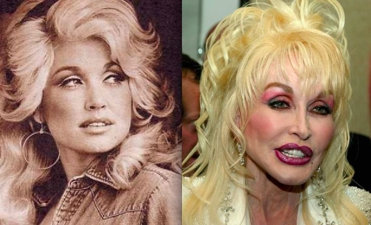 Celebrities-Whose-Failed-in-Plastic-Surgeries_Dolly-Parton