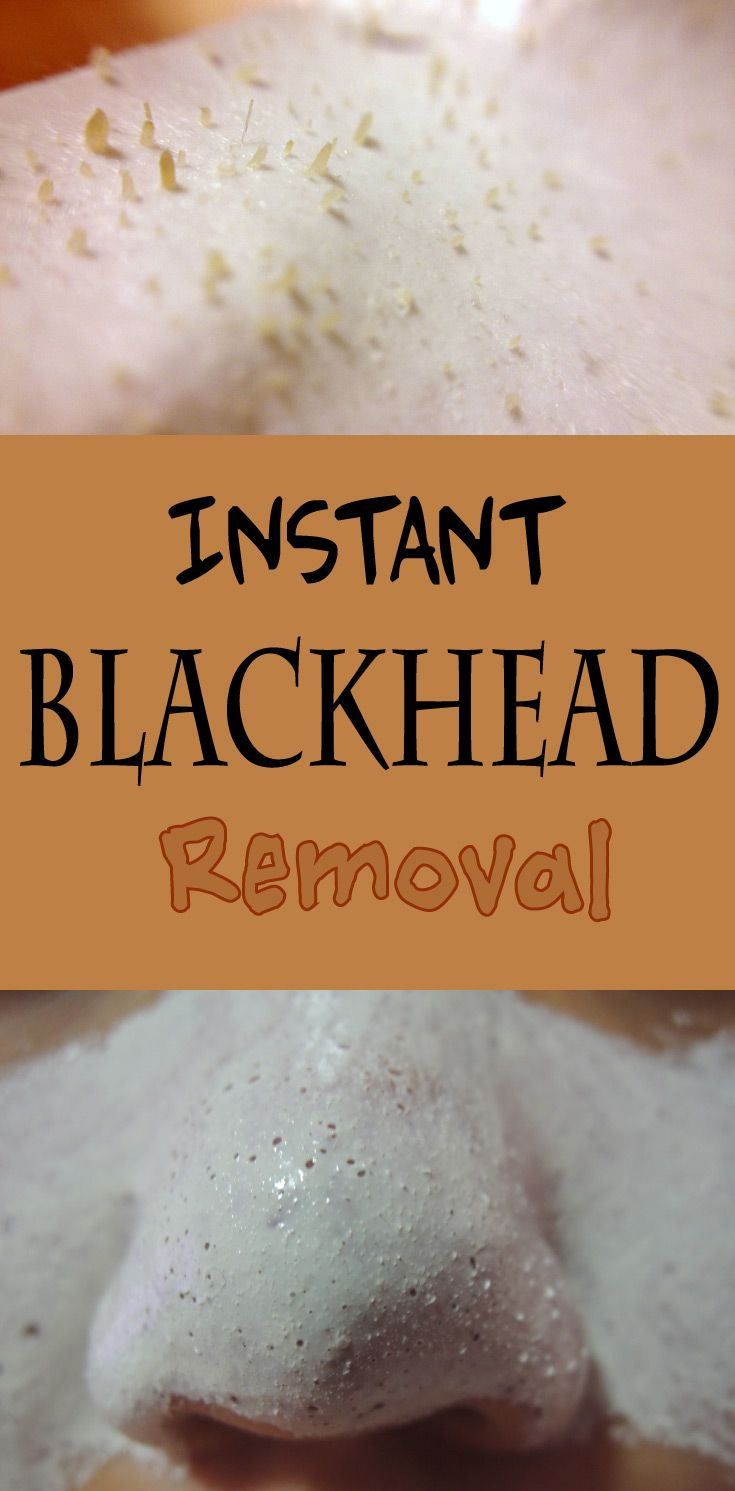 Instant Blackhead Removal