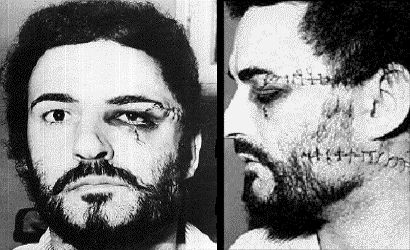 """Peter Sutcliffe, who spent over two hours in the witness box, stated he had been a victim of a carefully planned attack carried out by Costello """"in seven seconds"""" with a broken coffee jar which had scarred his face and neck. He had not spoken to Costello either before or during the attack. Giving his evidence, Sutcliffe said: """"I decided to go from my cell, No. 11, to the recess to get some water. I had a plastic bowl with me. I filled the bowl with hot water, and as I was turning the tap off…"""