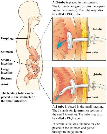 100 Ideas To Try About Tubes Nursing Tips Feeding Tube