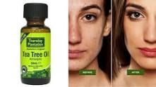 How to Use Tea Tree Oil for Acne: 7 Most Popular Remedies
