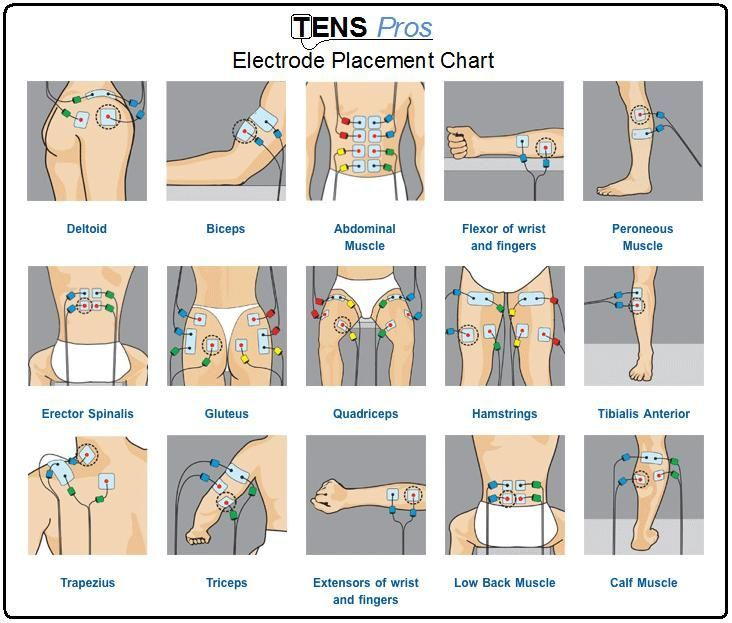 TENS unit electrode placement chart for different sports/life injuries. Repinned by SOS Inc. Resources pinterest.com/sostherapy.