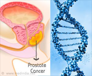 Genetic Test Can Become a Game Changer in Identified Aggressive Prostate Cancers