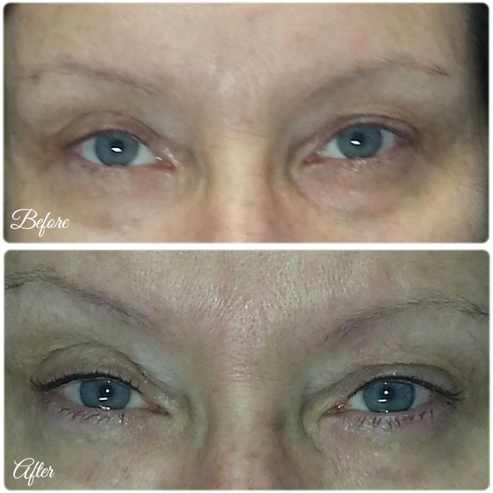 Before and after Permanent make-up #permanentmakeup #eyeliner