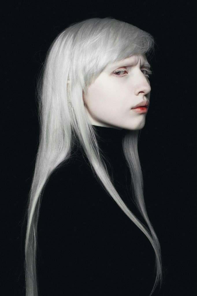 Albino                                                                                                                                                                                 More