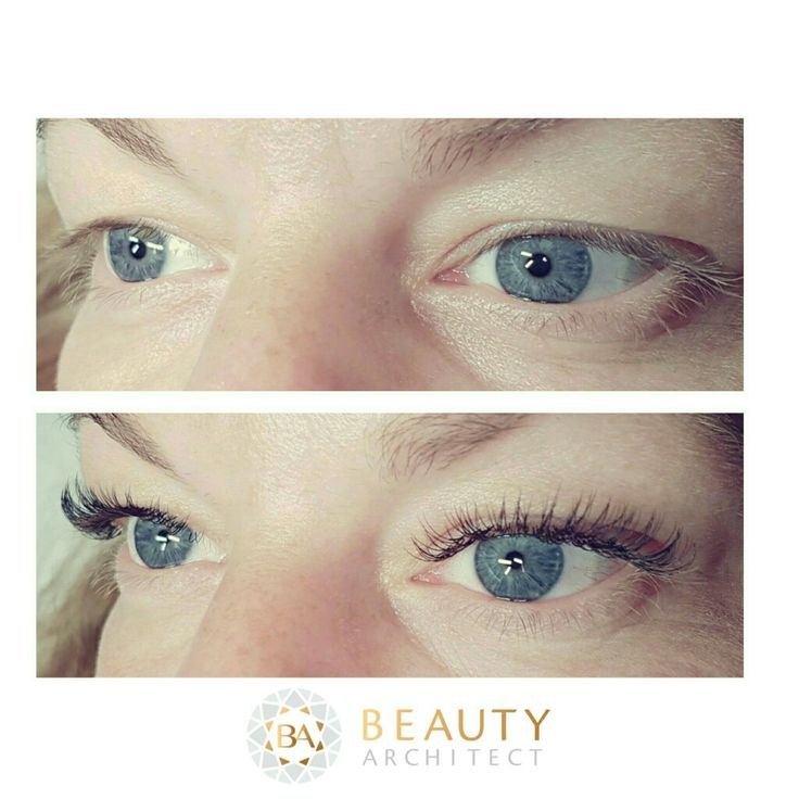 Eyelid lift with eyelash Extensions
