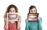 Wybielanie zębów w domu. Sposoby na wybielenie zębów domowym sposobem