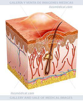 Piel afectada por acné o pústula esquema. Segmento de la piel afectada por un acné o pústula. El acné es ....