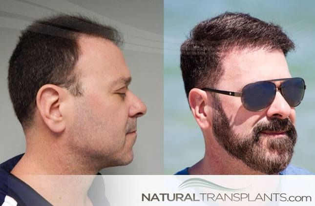 Baldness Cure | Hair Transplant Before and After