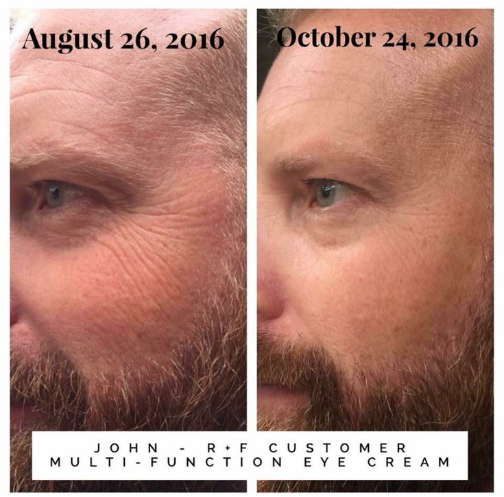 I Wanted To Post A Before And After Picture Of The: 1000+ Images About Rodan & Fields On Pinterest
