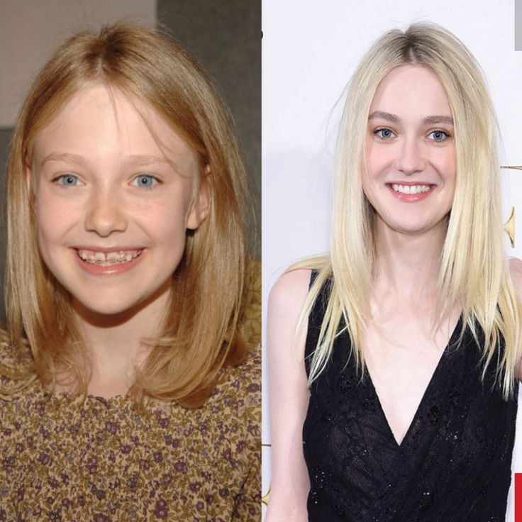 BEFORE YOU START to wonder if orthodontic treatment is worth it, check out these before and after pictures of 12 celebrities who once had braces! 303-452-2277 www.1stimpressionsortho.com #clearbraces #braces