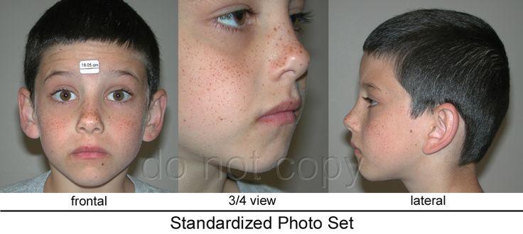 https://www.google.com/search?client=firefox-b-ab&tbm=isch&q=3/4+view+face+pics&chips=q:3+4+view+face+pics,online_chips:photography,online_chips:portrait+photography&sa=X&ved=0ahUKEwjuvKiTz9rZAhWHUJAKHTy-DXQQ4lYIMygN&biw=1366&bih=631&dpr=1#imgrc=pDbVlCIJdOUmTM: