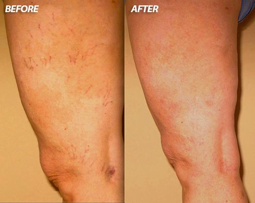 Spider Vein Treatment Before and After Photo