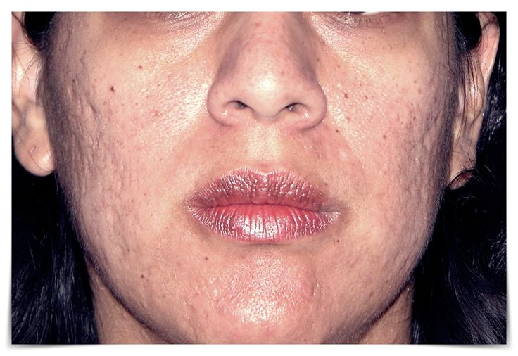 Easy Tips to Remove Acne Scars Permanent