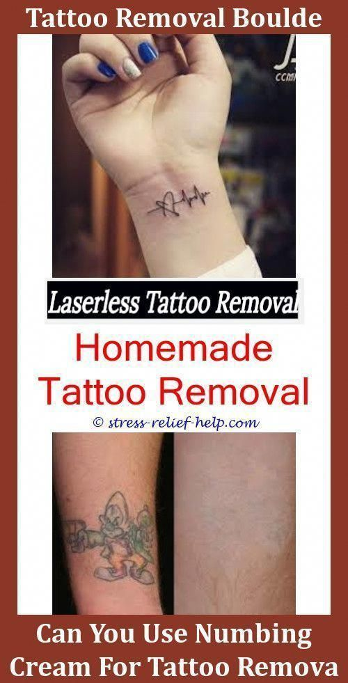 Tattoo Printer How To Remove Excess Tattoo Ink From Skin
