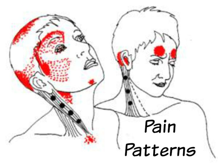 40 Best Images About Occipital Neuralgia On Pinterest