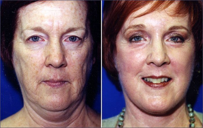 Face Revitalization Exercises Will Restore Your Face To Prior Years