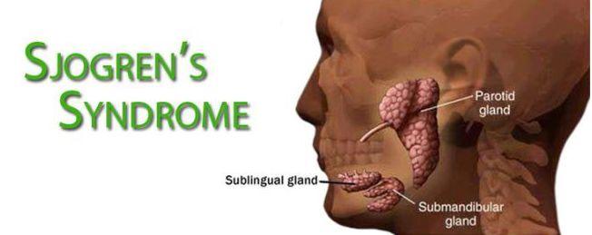 Medicine di emorroidi a uomini di una targa