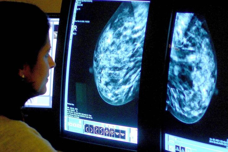 Catching breast cancer early still saves lives, even with better treatment such as targeted drugs, Dutch researchers reported Tuesday