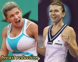 Simona Halep Breast Reduction – Plastic Surgery be…