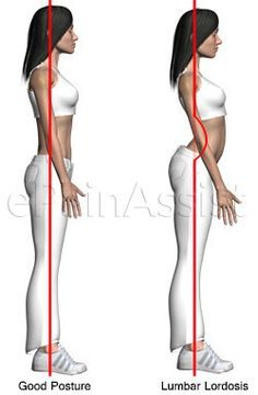 Lumbar Lordosis or Lumbar Swayback: 5 Simple Corrective Exercises, Tips For Prevention. Repinned by SOS Inc.