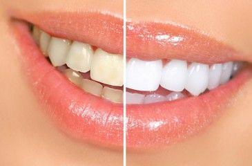 Отбеливание зубов перекисью водорода и содой. Перекись водорода для отбеливания зубов в домашних условиях