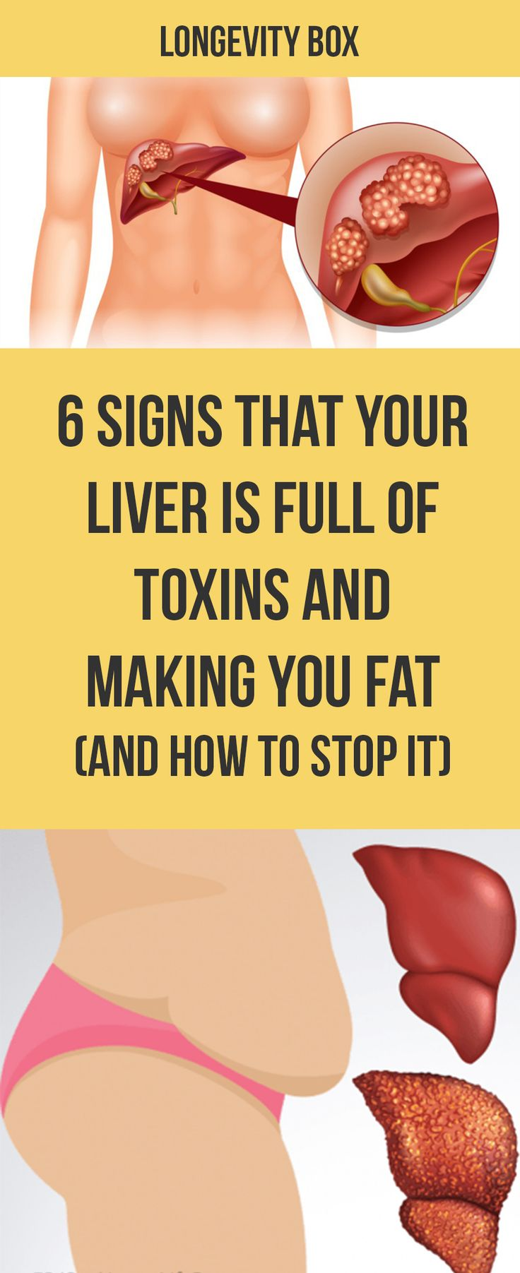 What do you know about liver disease and how important it is to keep our livers in top condition?
