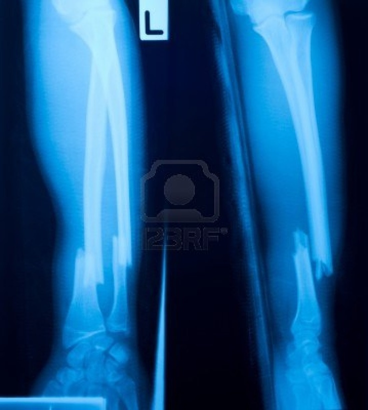 Fractured Leg - Car Accident https://www.hoffmannpersonalinjury.com/bone-fracture-broken-bone/ X-Ray of Leg Fracture resulting from Car Accident.  Fracture of Tibula & Fibula are common in severe head on or rear end car accidents.  Driver and Passenger as well as rear passengers are thrown into and under the dashboard and legs crushed.  Crush injuries occur in the legs, ankles and feet.  Fractures can be total or partial, necessitating surgery.  https://www.hoffmannpersonalinjury.com