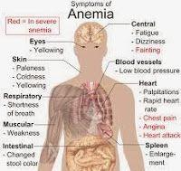 Solusi obat anemia tradisional dengan menggunakan teripang laut yang ampuh, aman tanpa efek samping.