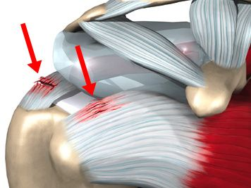 Shoulder tendonitis - how to recognize it and treat it. psoas pain physical therapy