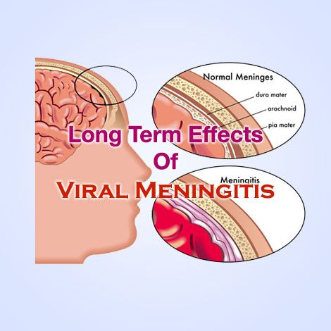 Viral Meningitis Long Term Effects