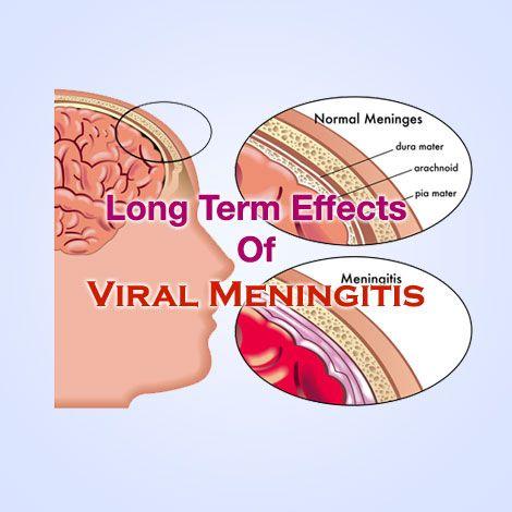 viral-meningitis-symptoms-in-adults-naked-girl-blonde-sexy