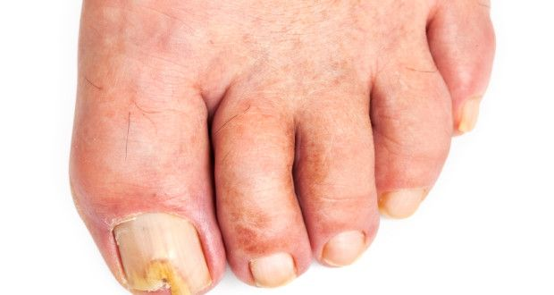 Do's And Don'ts In Preventing Fungal Nail Infections | Health Digezt