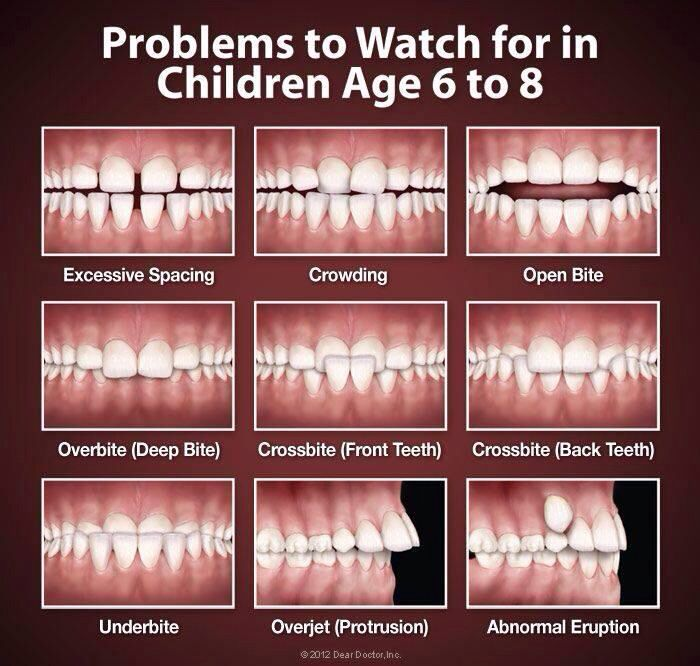Problems to watch for in children age 6-8. I had the one on the bottom right until I was 20 years old and finally got braces.