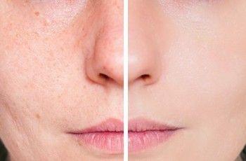 Acne – Tratamentos naturais | http://saudenocorpo.com/acne-tratamentos-naturais/