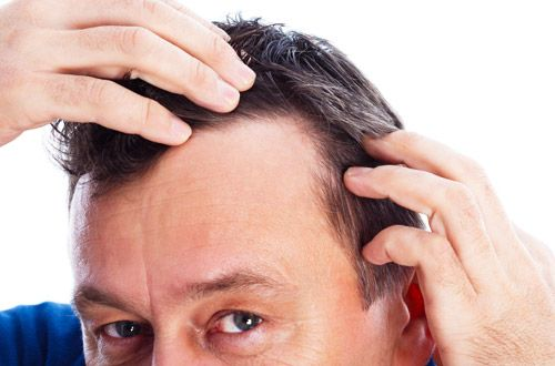 Herbal remedies – List of Ayurvedic Treatment or Medicine for Hair LossThere are approximately 3,000,000 single hair follicles on the scalp