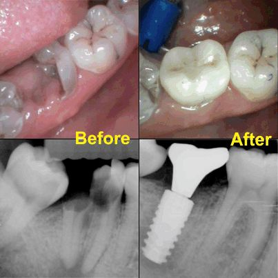 Before: On the left side is a picture and x-ray of a tooth that cannot be restored, so it is extracted. After: On the right side is a picture and x-ray showing how the tooth was replaced with a dental implant and crown. http://www.thedaviedentist.com/home