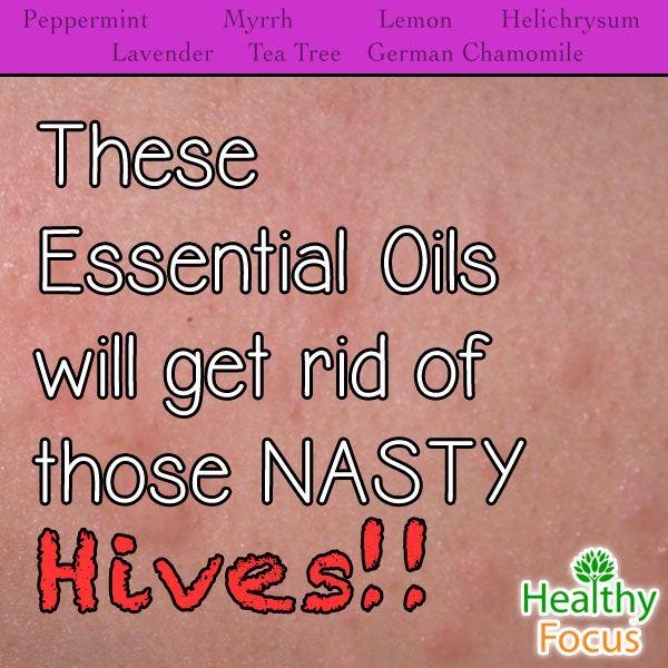 7 Proven Essential Oils for HivesPaula Pyper