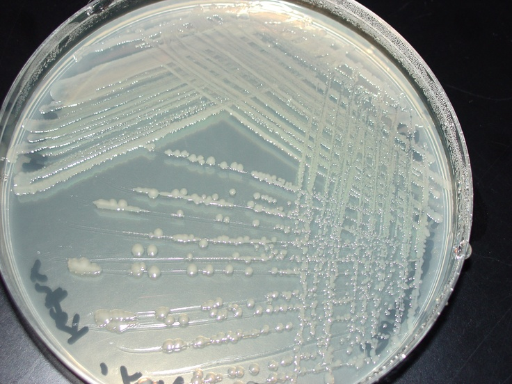 isolation of individual colonies lab Diyeast: isolating yeast isolating yeast if you already have a saccharomyces culture from a yeast lab handy look for medium-sized, white to off-white, nicely round, individual colonies pick up a small amount from one colony.