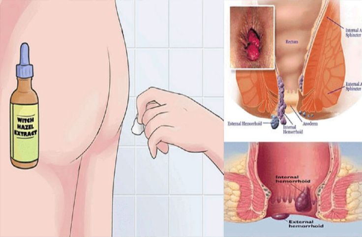 Hemorrhoids are not only painful but annoying as well because they appear on sensitive areas and it can turn to be really uncomfortable for you. When the veins and vessels around the anus swell too much hemorrhoids will appear and it can affect you in many areas. These hemorrhoids are one of the most tedious …