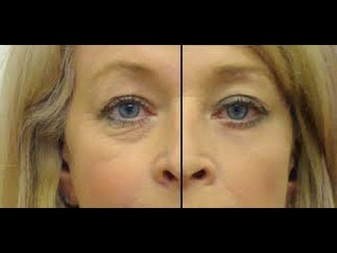 Haz tu serum de ojos para eliminar arrugas, ojeras y bolsas- Anastassia ...