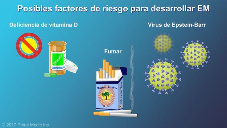 Algunos posibles factores de riesgo para desarrollar EM son la deficiencia de vitamina D, fumar y el virus de Epstein-Barr.slide show: explicación de la esclerosis múltiple. en esta presentación de diapositivas se describen las causas, los síntomas comunes y la naturaleza de la esclerosis múltiple, así como distintos tipos de farmacoterapias utilizadas para el tratamiento de la enfermedad.