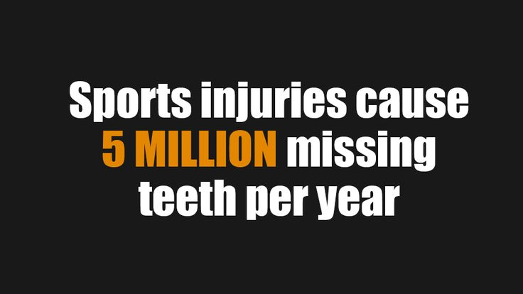 Missing teeth due to sports injuries can covered up by dental implants.
