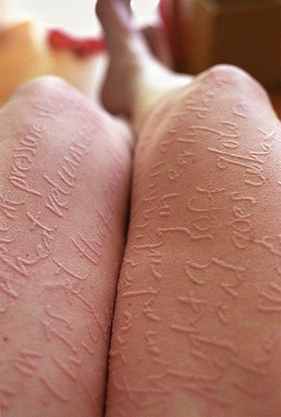 Not technically a body mod, since she has dermatographia, but gorgeous nonetheless...