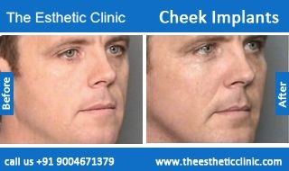 Emphasize your cheeks, Get Cheek implant surgical procedure by Dr. Debraj Shome. He is the most experienced plastic surgeon in India. To book an appointment, visit the website today at http://www.theestheticclinic.com/cosmetic/facial-implant/cheek-implant.html