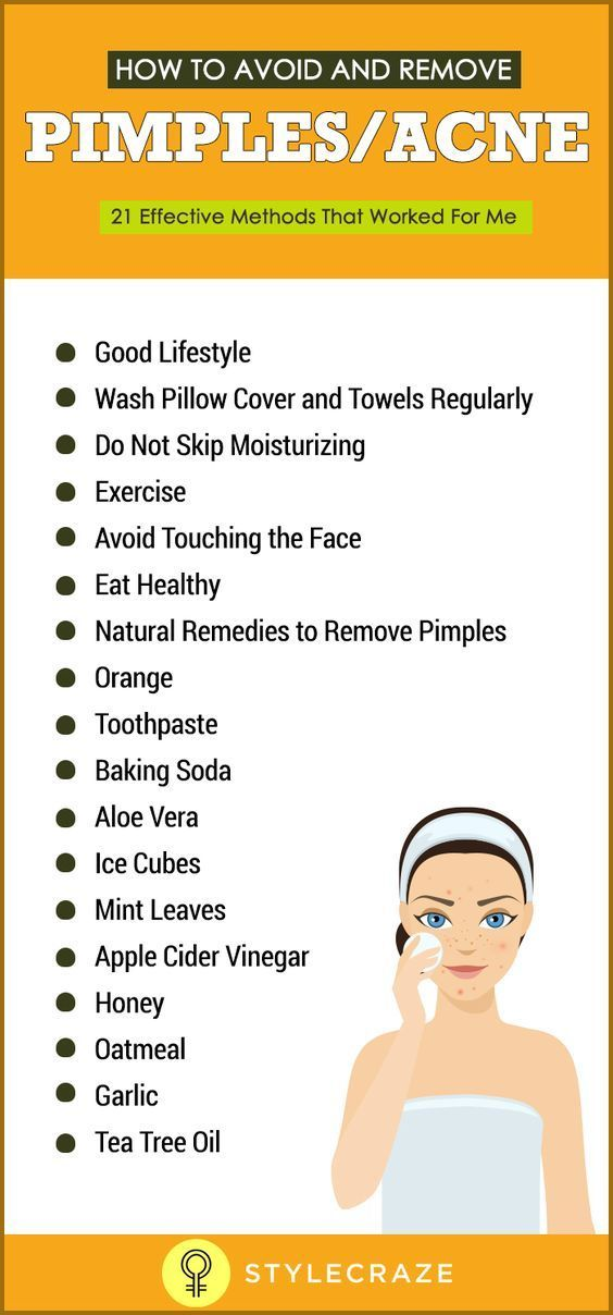 Pimples or acne are the worst nightmares a girl can suffer especially during her teenage. Here are 21 effective ways given on how to avoid pimples. Follow for a beautiful skin, ** Check this informative post by going to the link at the image.